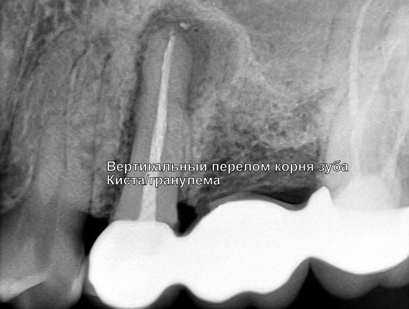 Трещина корня зуба, киста зуба