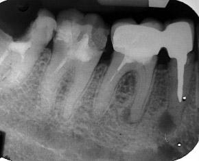 Киста зуба, гранулема зуба
