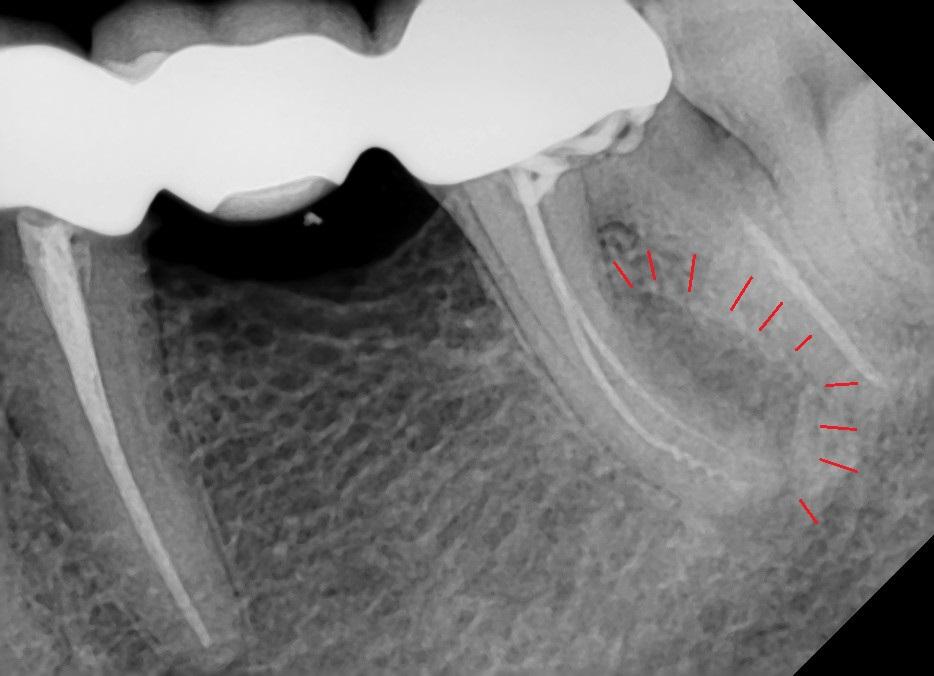 Боковая киста зуба