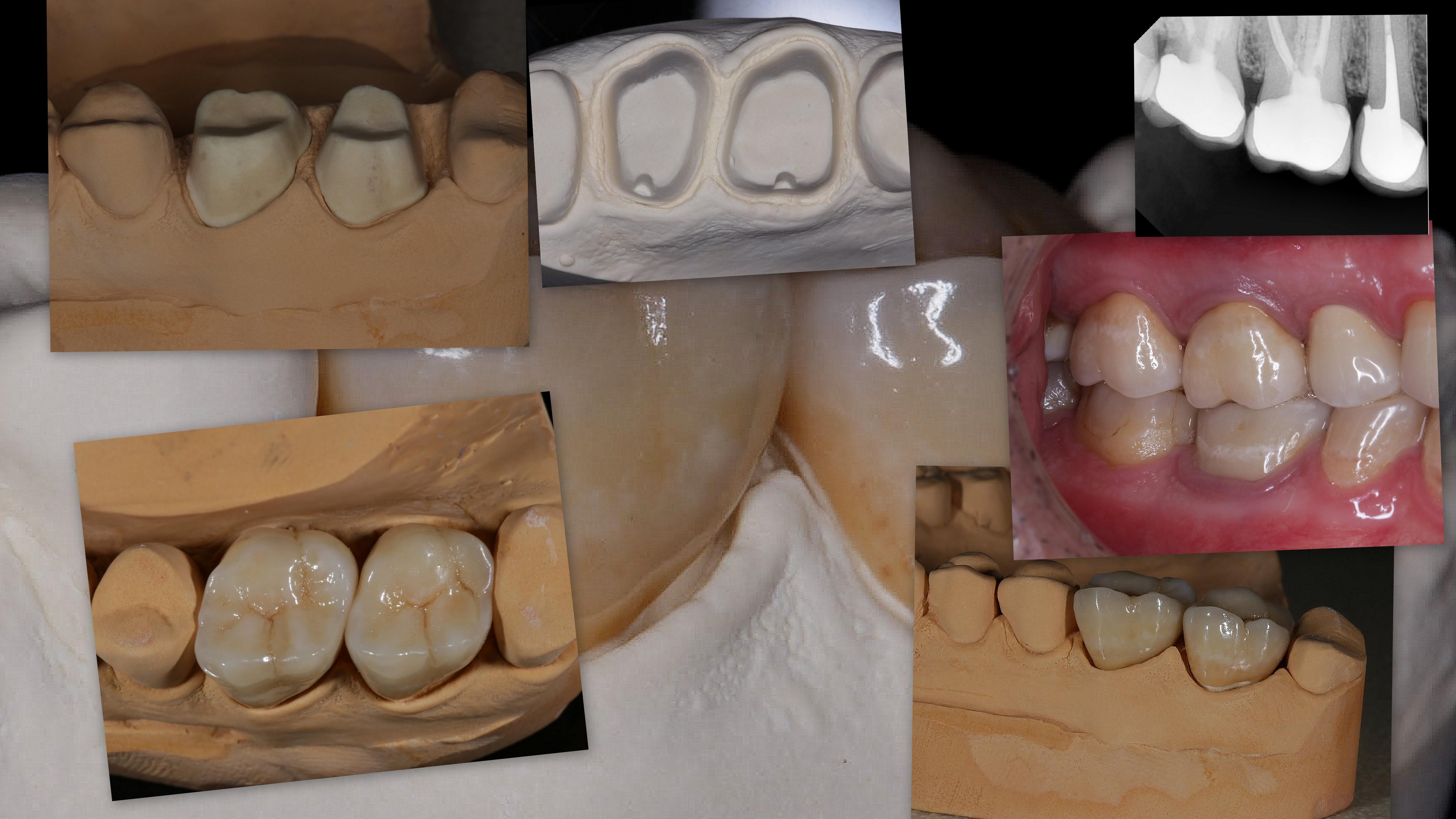 Протезирование моляров верхней челюсти коронками на основе диоксида циркония