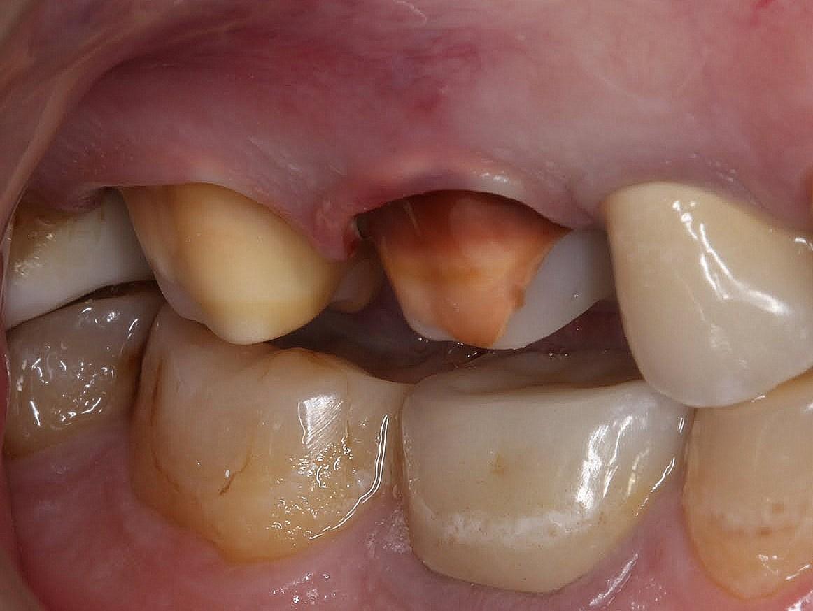 Состояние зубов в день препарирования. 16 зуб изменен в цвете до темно-коричневого оттенка вследствии применения резорцин-формалинового метода лечения в далеком прошлом. Зубному технику предстоит выполнить непростую задачу перекрытия темно-коричневого оттенка дентина зуба безметалловой циркониевой коронкой.
