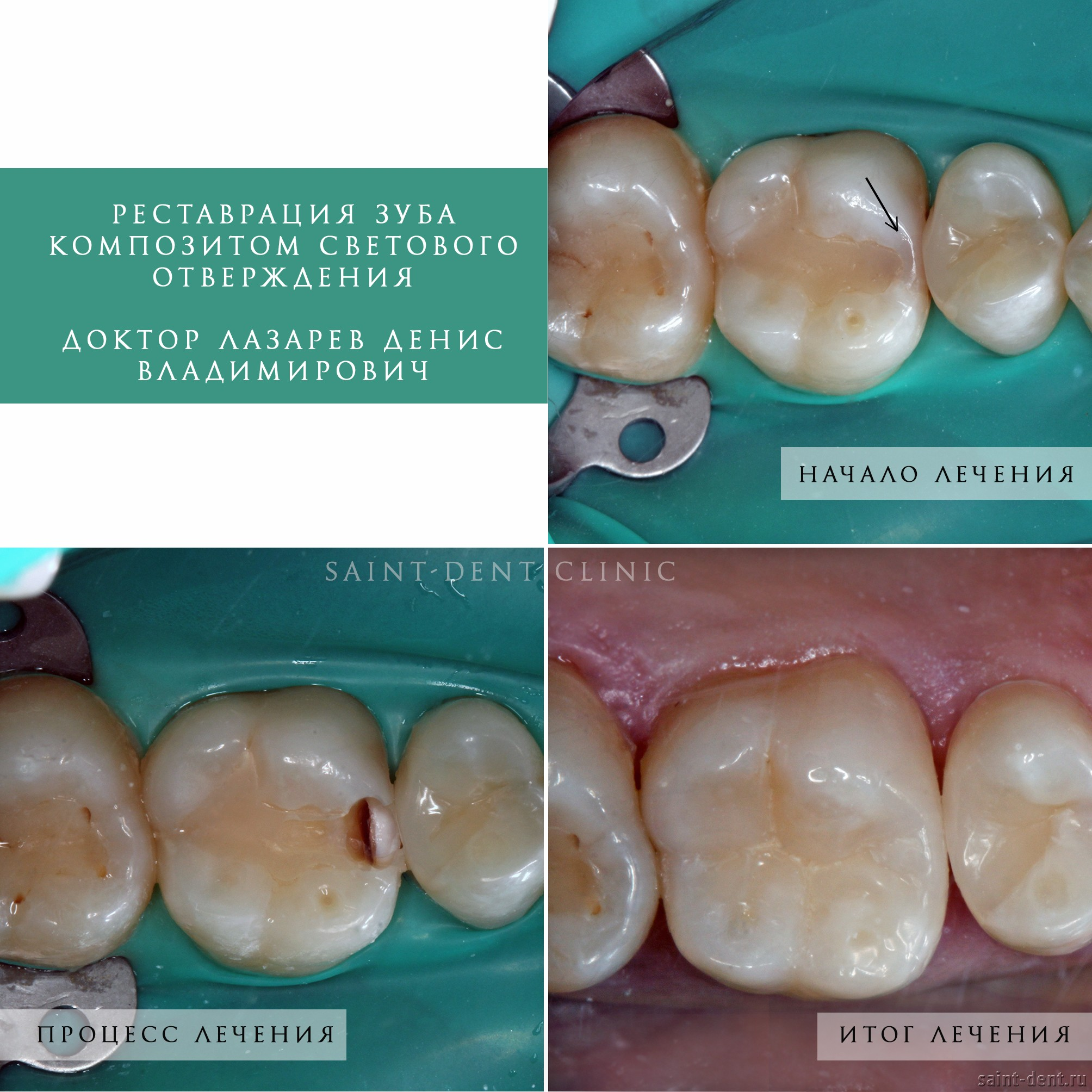 Реставрация зуба световым композитом это