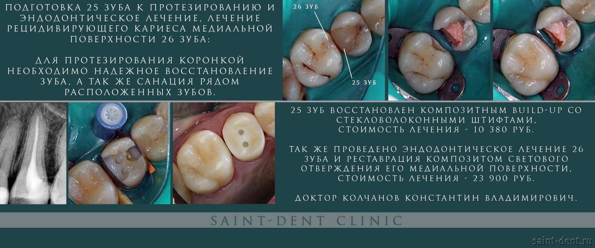 Как лечат зуб этап