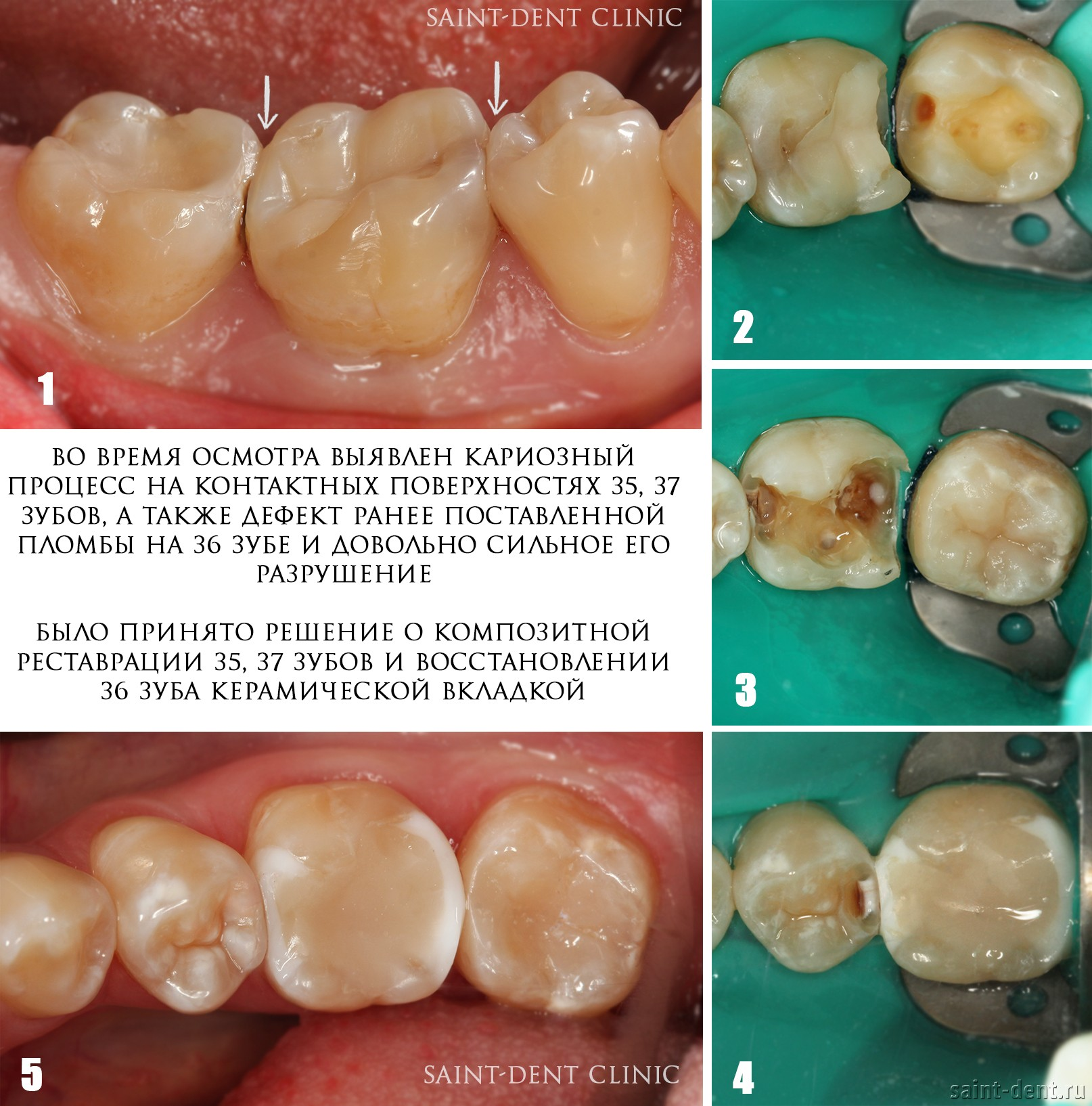 Материал пломб и протезов зубов