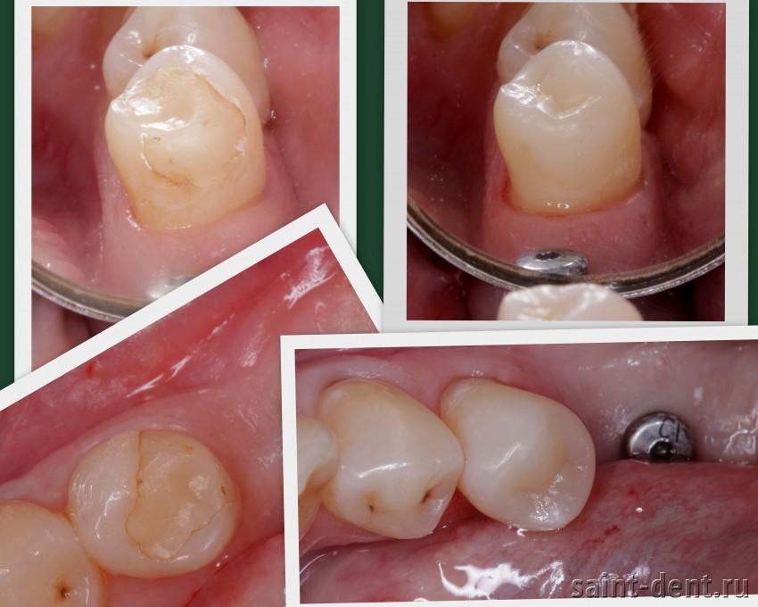Из чего сделать пломбу на зуб в домашних условиях